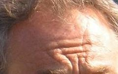 tony-blair forehead